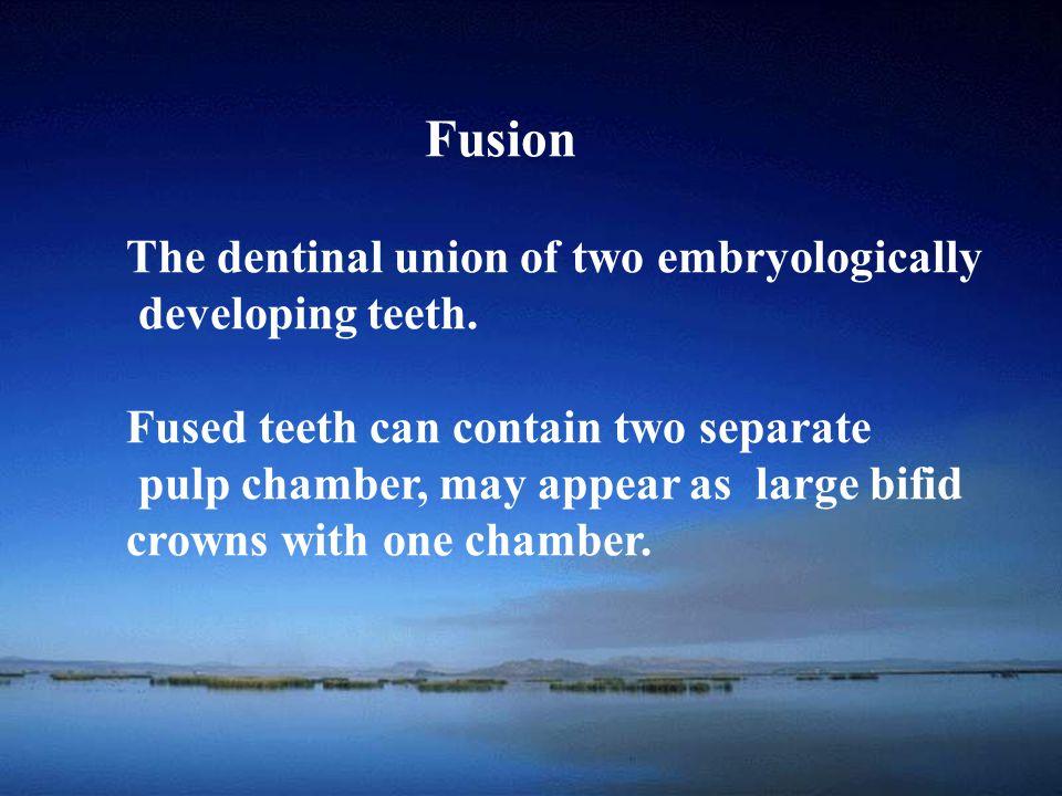 School of Fusion