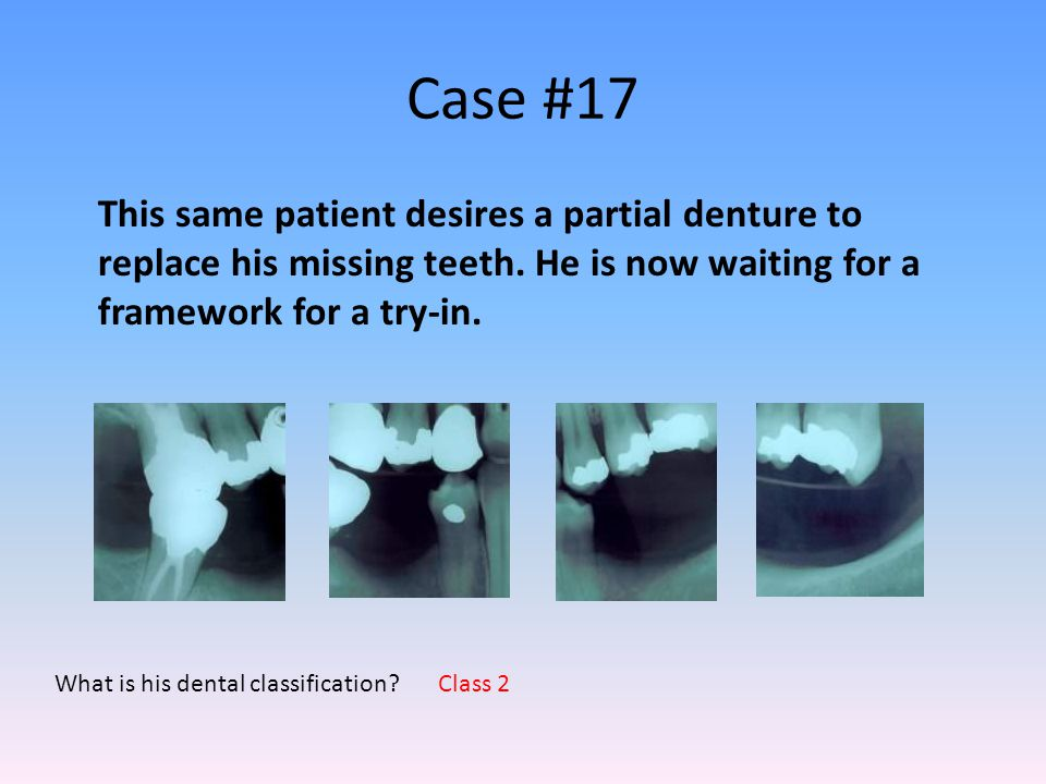 Case #17 What is his dental classification? This same patient desires a partial denture to replace his missing teeth. He is now waiting for a framewor