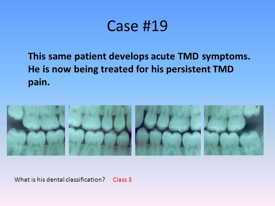 Case #19 What is his dental classification? This same patient develops acute TMD symptoms. He is now being treated for his persistent TMD pain. Class