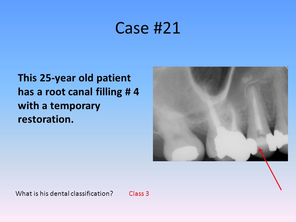 Case #21 What is his dental classification? This 25-year old patient has a root canal filling # 4 with a temporary restoration. Class 3