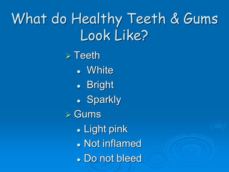 What do Healthy Teeth & Gums Look Like.