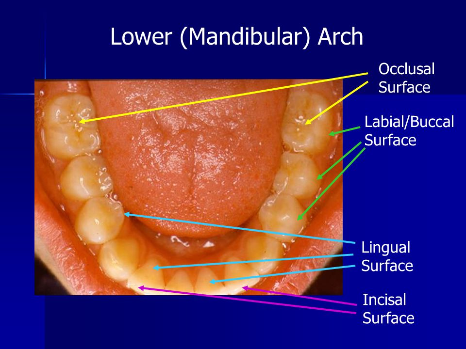 If demineralization is allowed to continue, the tooth will eventually be eroded enough for a cavity to form.