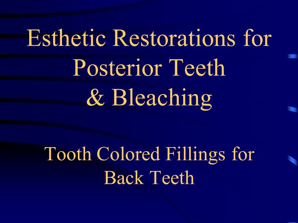 Esthetic Restorations for Posterior Teeth & Bleaching Tooth Colored Fillings for Back Teeth