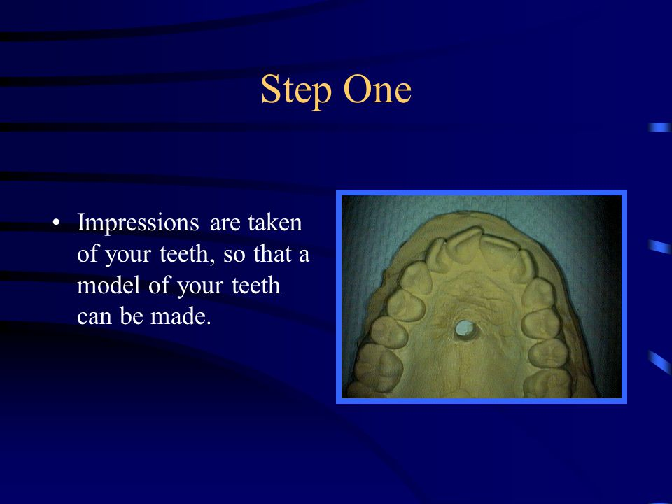Step One Impressions are taken of your teeth, so that a model of your teeth can be made.