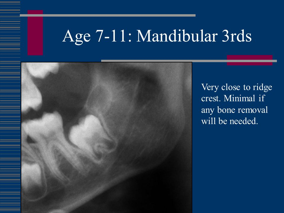 Age 7-11: Mandibular 3rds 1.Mineralization is either not present or only mineralized cusps are evident 2.Remove requires a flap and minimal, if any, bone removal 3.Psychological factors and parental support should be carefully evaluated on a case by case basis