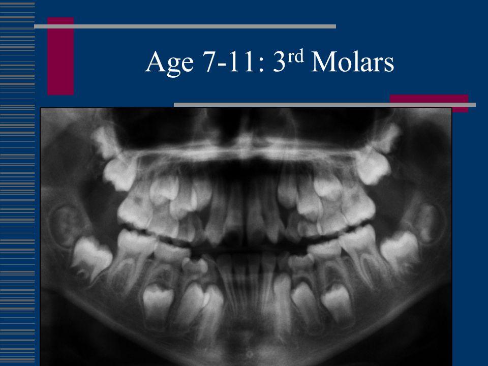 Age 7-11: 3 rd Molars