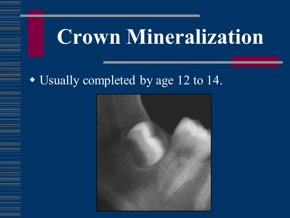 Root Formation Usually half-formed by age 16.