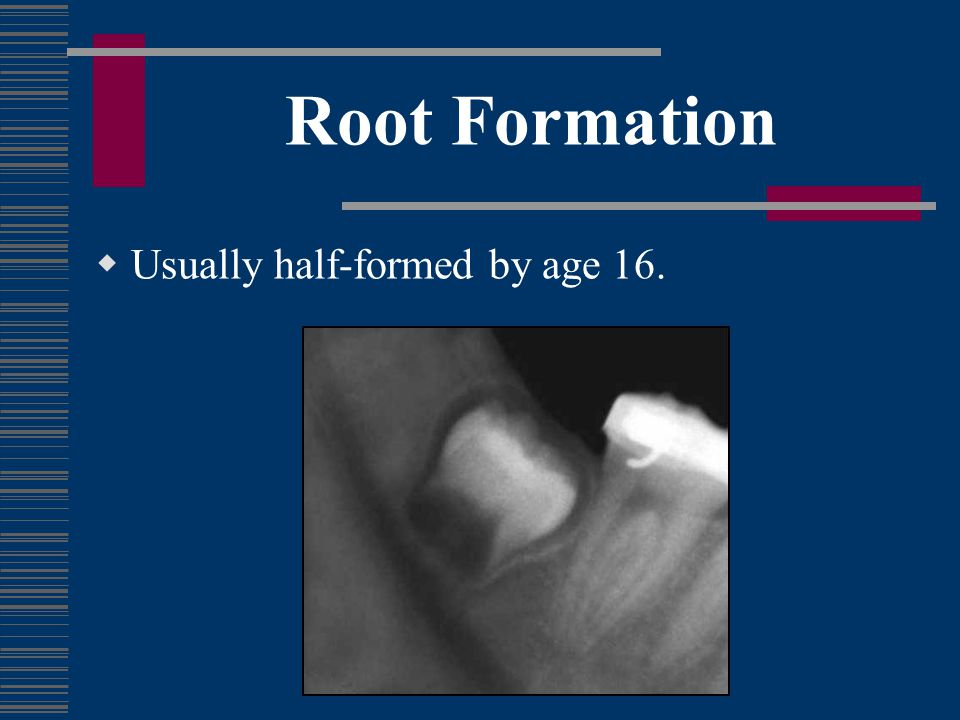 Root Completion Fully formed roots with open apices are usually present by age 18.