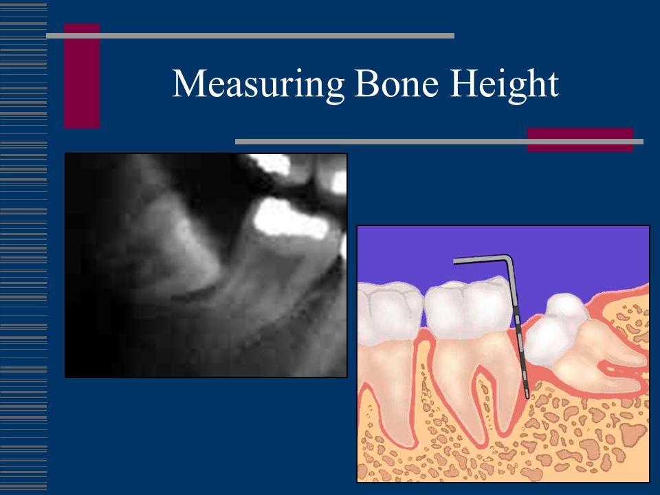 Measuring Bone Height