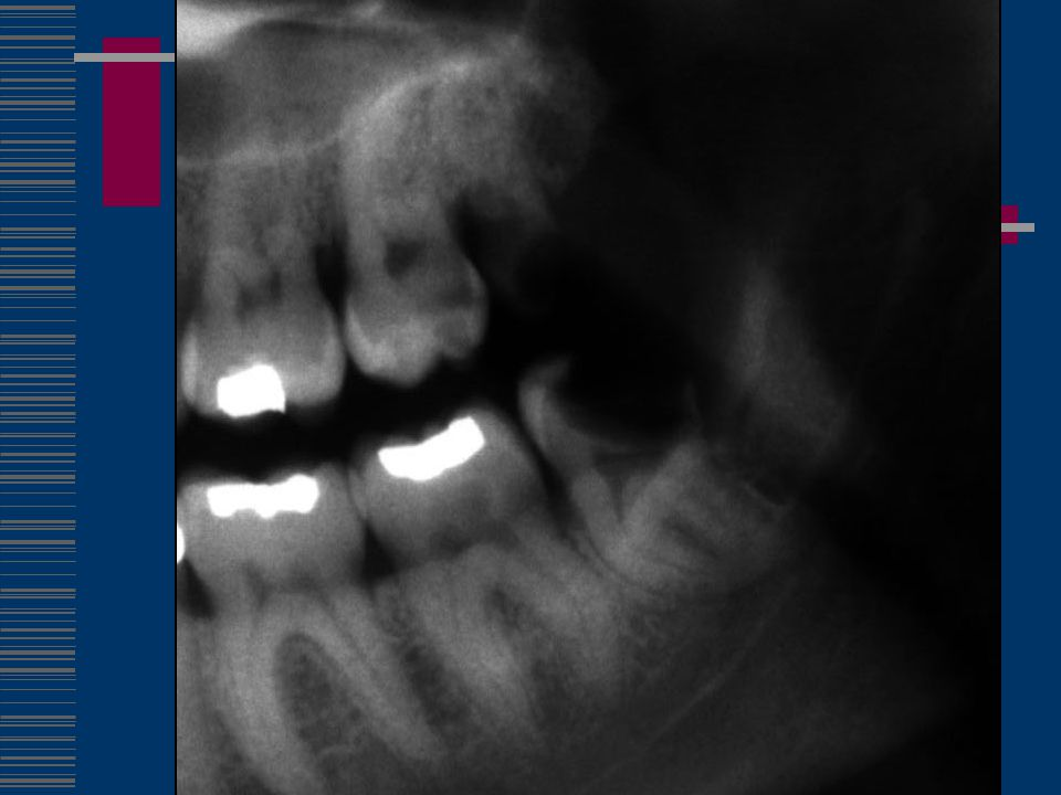Problem #4 – 2 nd Molar Caries