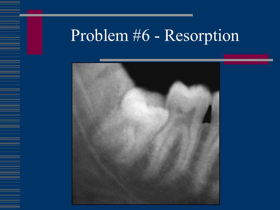 Problem #7 - Supereruption