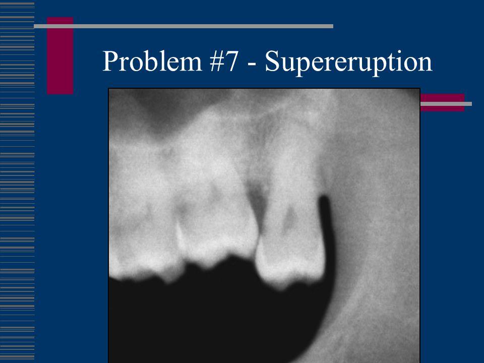 Problem #8 - Cysts Dentigerous Cyst