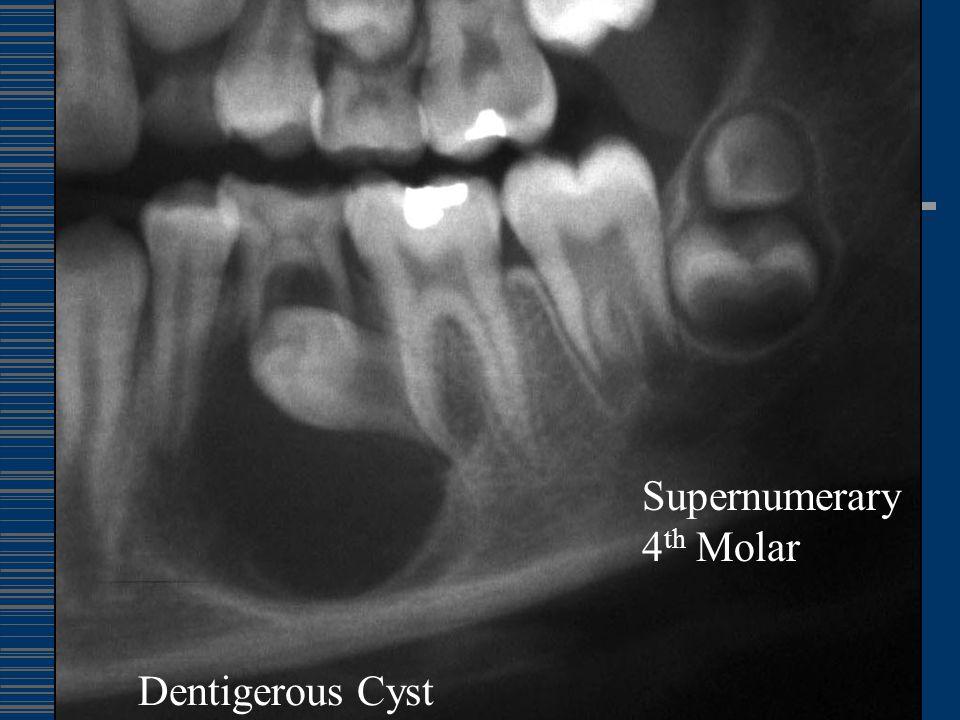 Dentigerous Cyst Supernumerary 4 th Molar