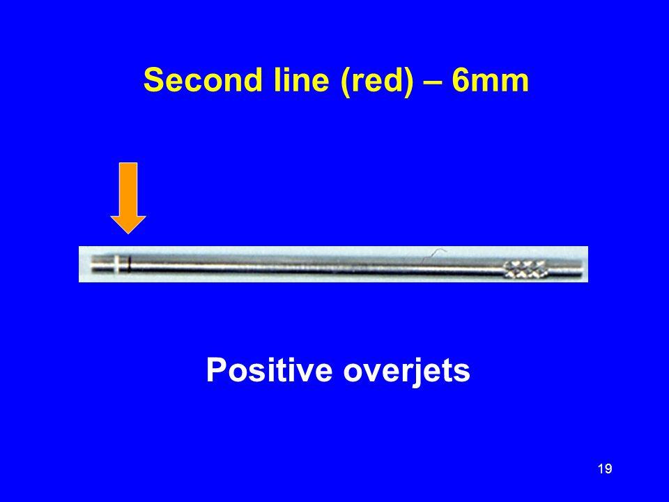 Positive overjets Second line (red) – 6mm 19