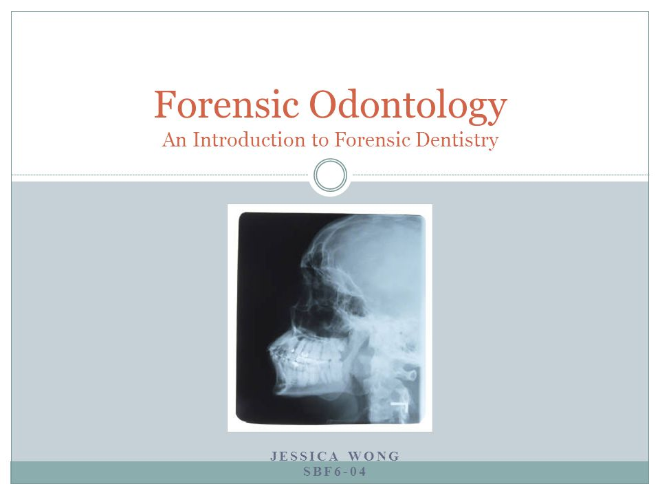 Forensic Odontology An Introduction to Forensic Dentistry JESSICA WONG SBF6-04