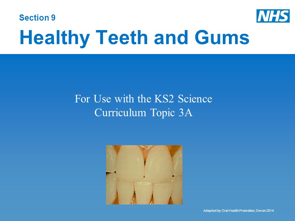 Acid erosion Different from tooth decay, erosion is caused by acids in drinks.
