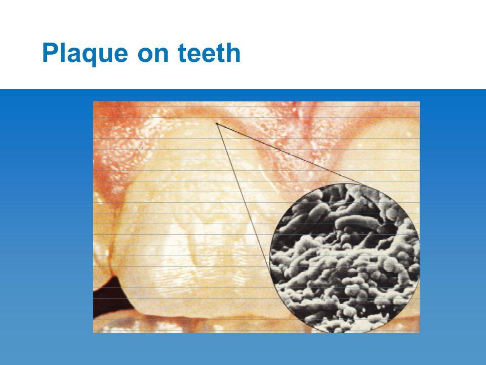Plaque on teeth