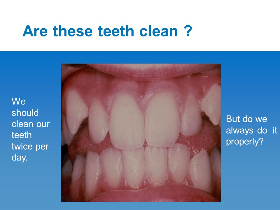 Are these teeth clean ? We should clean our teeth twice per day. But do we always do it properly?