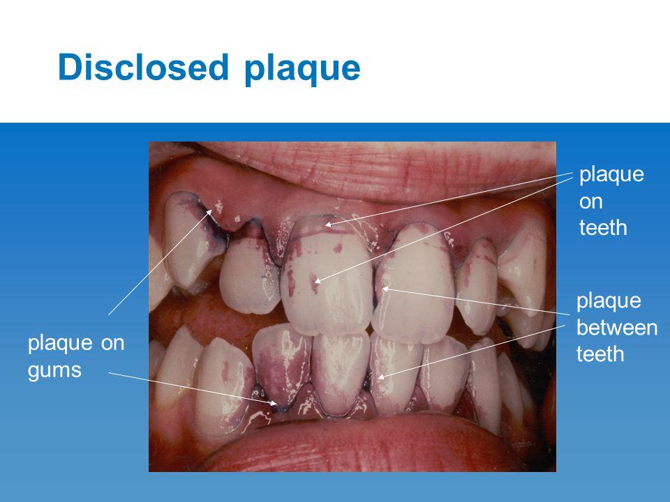 Disclosed plaque plaque on gums plaque between teeth plaque on teeth