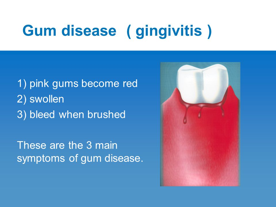 Gum disease ( gingivitis ) 1) pink gums become red 2) swollen 3) bleed when brushed These are the 3 main symptoms of gum disease.