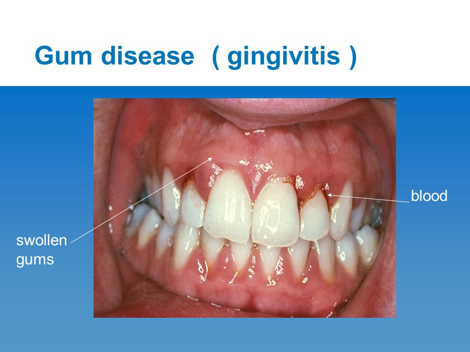 To prevent gum disease Use a medium to soft small headed toothbrush.