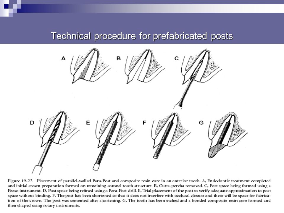4)Root selection in multi-rooted teeth posts are best placed in (the primary roots) in palatal roots of maxillary molars distal roots of mandibular mo