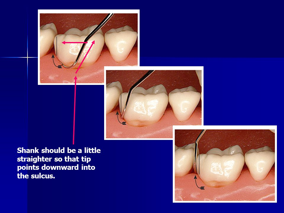Shank should be a little straighter so that tip points downward into the sulcus.