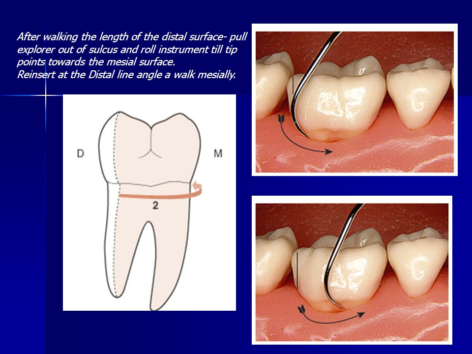 After walking the length of the distal surface- pull explorer out of sulcus and roll instrument till tip points towards the mesial surface. Reinsert a