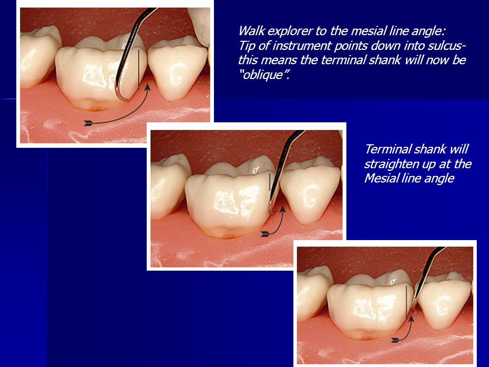 Walk explorer to the mesial line angle: Tip of instrument points down into sulcus- this means the terminal shank will now be oblique. Terminal shank w