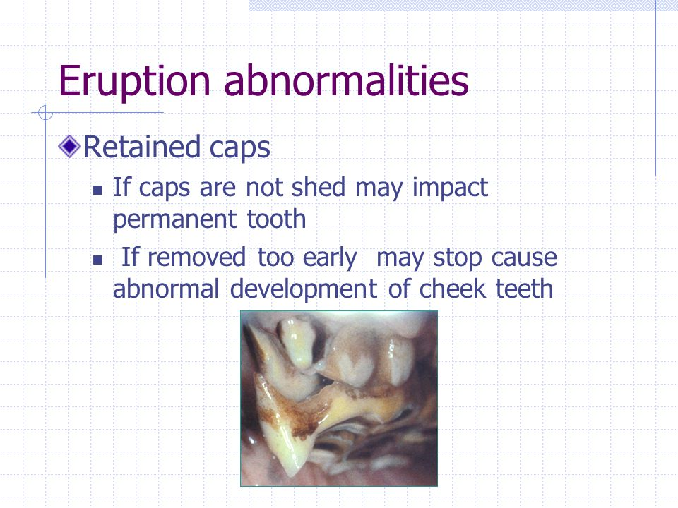 Eruption abnormalities Retained caps If caps are not shed may impact permanent tooth If removed too early may stop cause abnormal development of cheek
