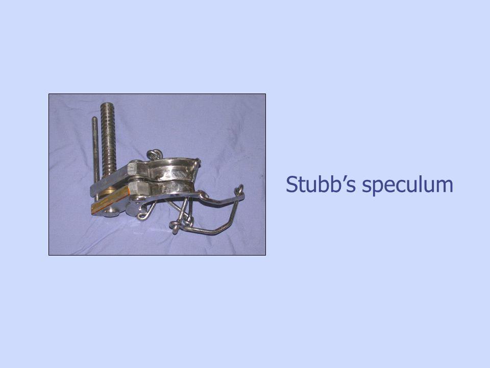 Stubbs speculum