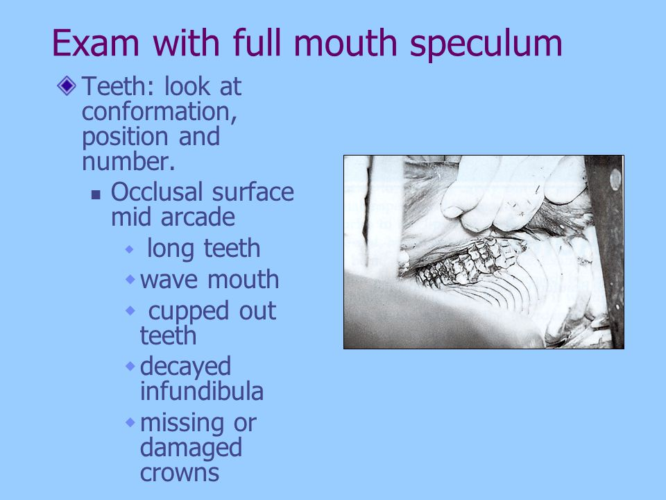 Exam with full mouth speculum Teeth: look at conformation, position and number. Occlusal surface mid arcade long teeth wave mouth cupped out teeth dec