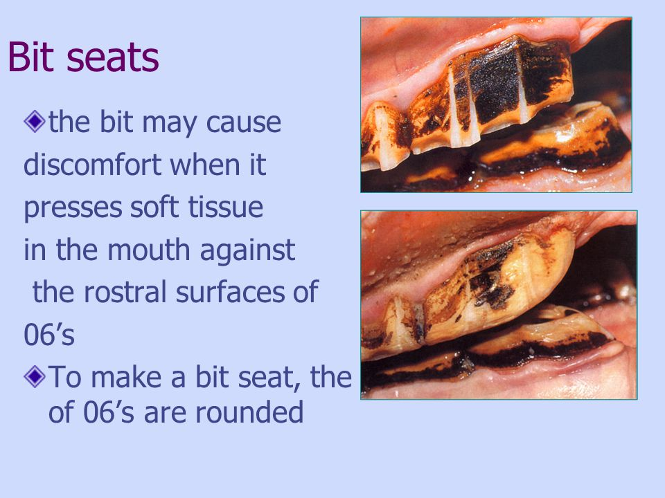 Bit seats the bit may cause discomfort when it presses soft tissue in the mouth against the rostral surfaces of 06s To make a bit seat, the rostral as