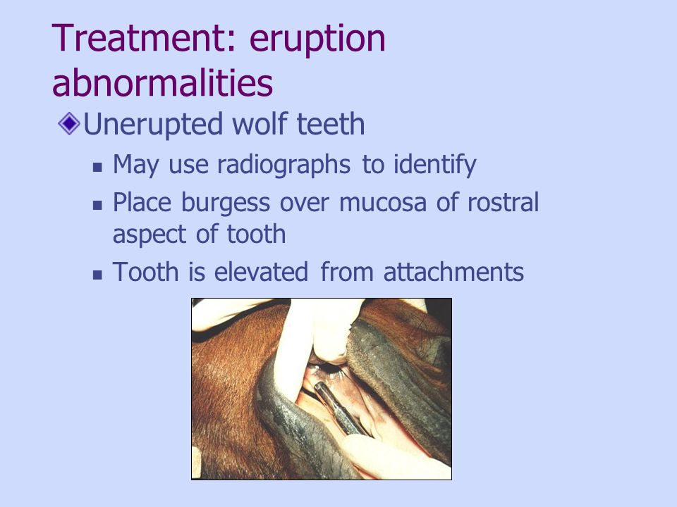 Treatment: eruption abnormalities Unerupted wolf teeth May use radiographs to identify Place burgess over mucosa of rostral aspect of tooth Tooth is e