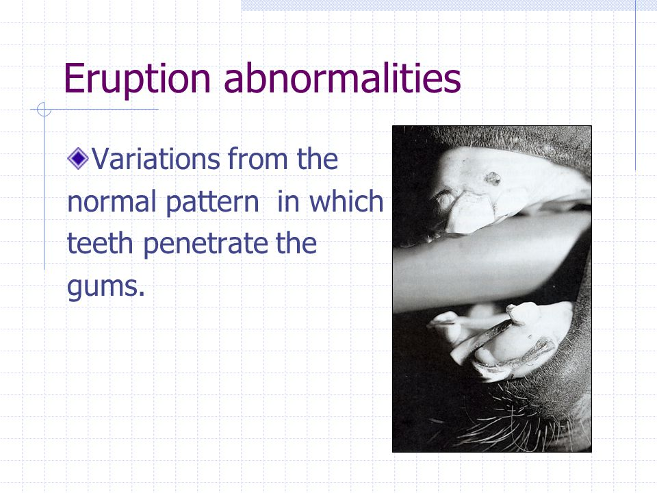 Treatment: disorders of wear Incisor wear abnormalities Avoid removing more than 2mm of incisors in one session
