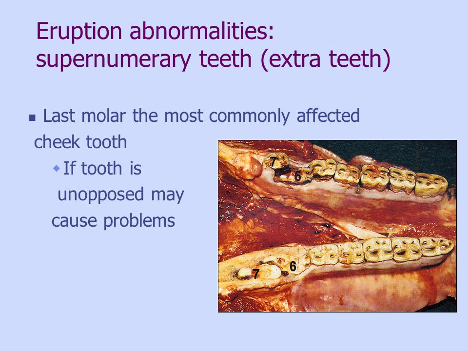 Eruption abnormalities: supernumerary teeth (extra teeth) Last molar the most commonly affected cheek tooth If tooth is unopposed may cause problems
