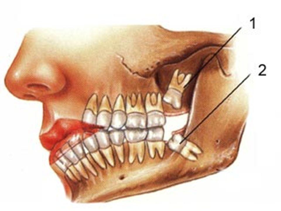 Text book Contemporary Oral and Maxillofacial surgery Peterson-Hupp