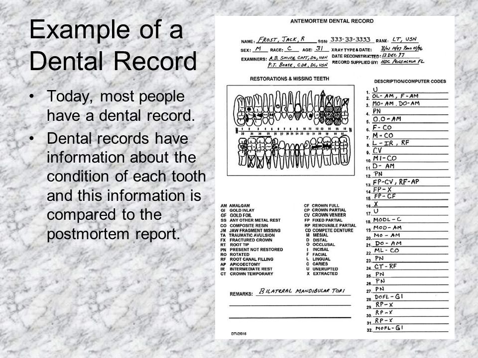 Example of a Dental Record Today, most people have a dental record. Dental records have information about the condition of each tooth and this informa