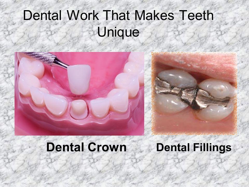 Dental Work That Makes Teeth Unique Dental Crown Dental Fillings