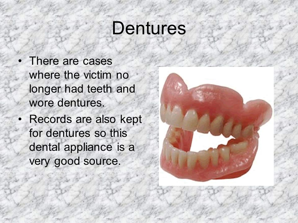 Dentures There are cases where the victim no longer had teeth and wore dentures. Records are also kept for dentures so this dental appliance is a very