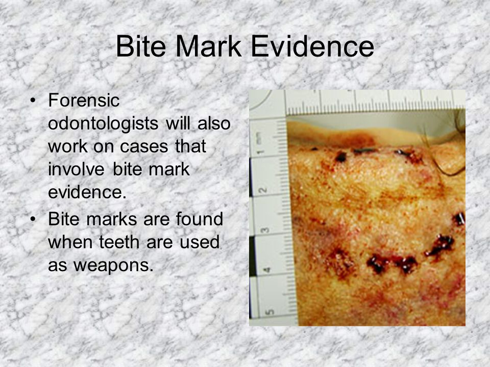 Bite Mark Evidence Forensic odontologists will also work on cases that involve bite mark evidence. Bite marks are found when teeth are used as weapons