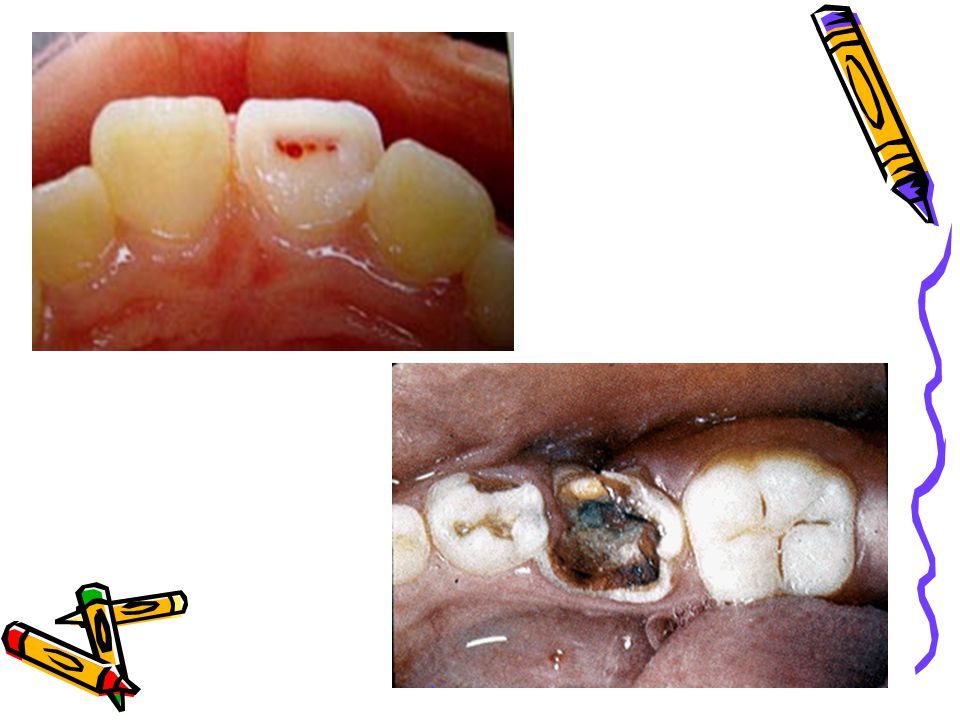 What are the general steps of root canal treatment.
