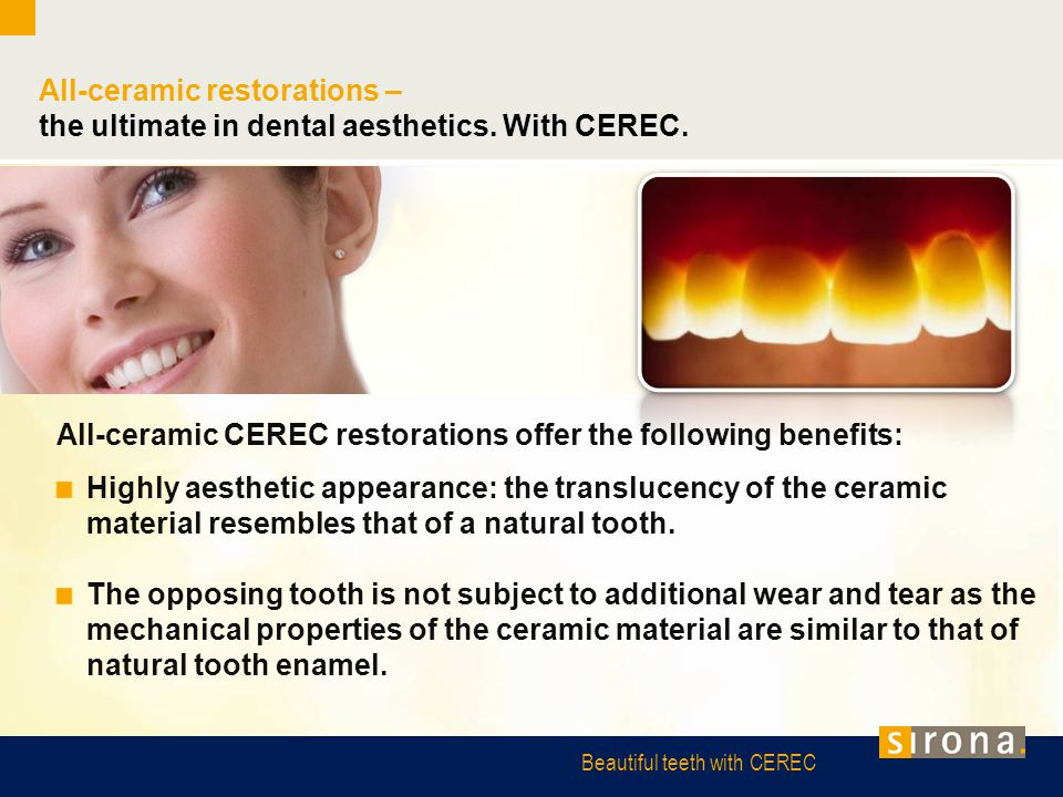Beautiful teeth with CEREC All-ceramic restorations – the ultimate in dental aesthetics. With CEREC. All-ceramic CEREC restorations offer the followin