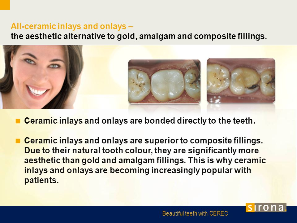 Beautiful teeth with CEREC All-ceramic inlays and onlays – the aesthetic alternative to gold, amalgam and composite fillings. Ceramic inlays and onlay
