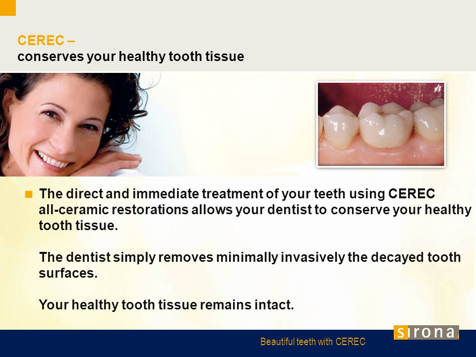 Beautiful teeth with CEREC CEREC – conserves your healthy tooth tissue The direct and immediate treatment of your teeth using CEREC all-ceramic restor