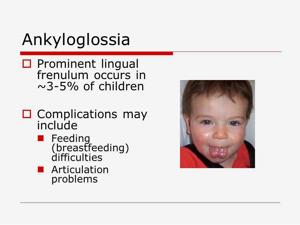 Ankyloglossia Prominent lingual frenulum occurs in ~3-5% of children Complications may include Feeding (breastfeeding) difficulties Articulation problems