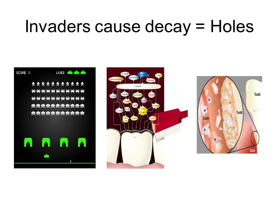 Invaders cause decay = Holes