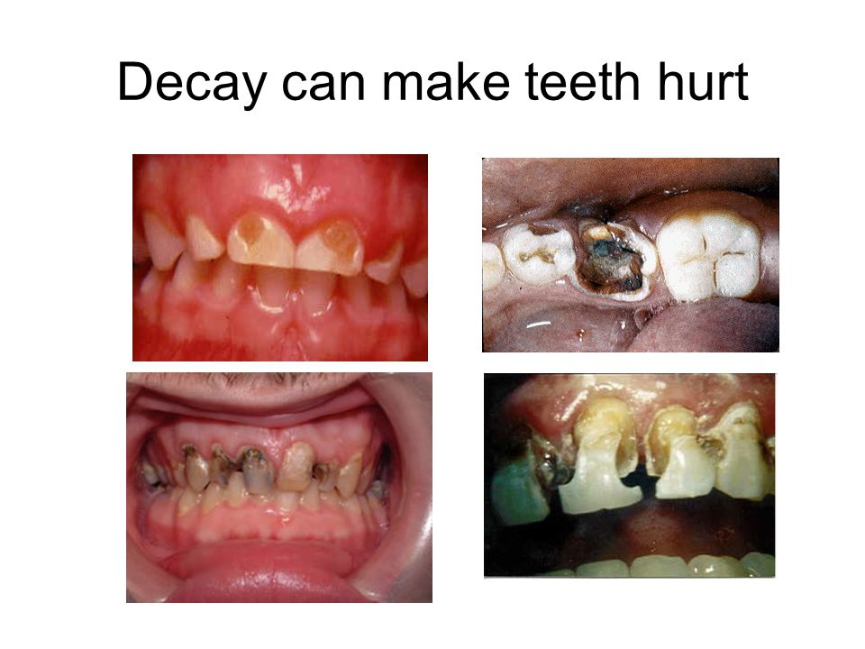 Decay can make teeth hurt