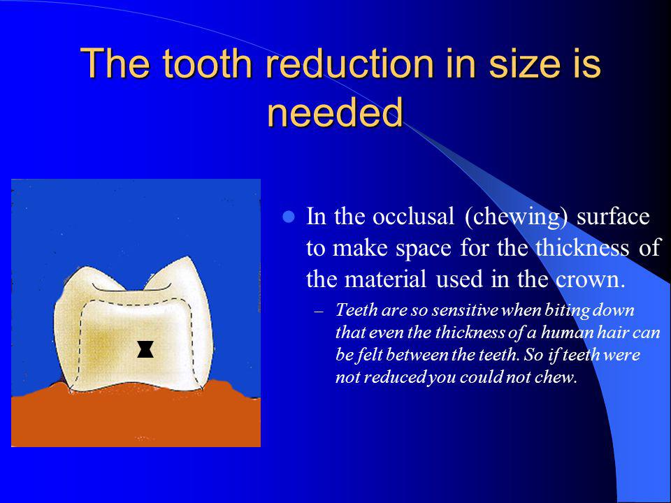 The tooth reduction in size is needed The tooth reduction in size is needed In the occlusal (chewing) surface to make space for the thickness of the material used in the crown.