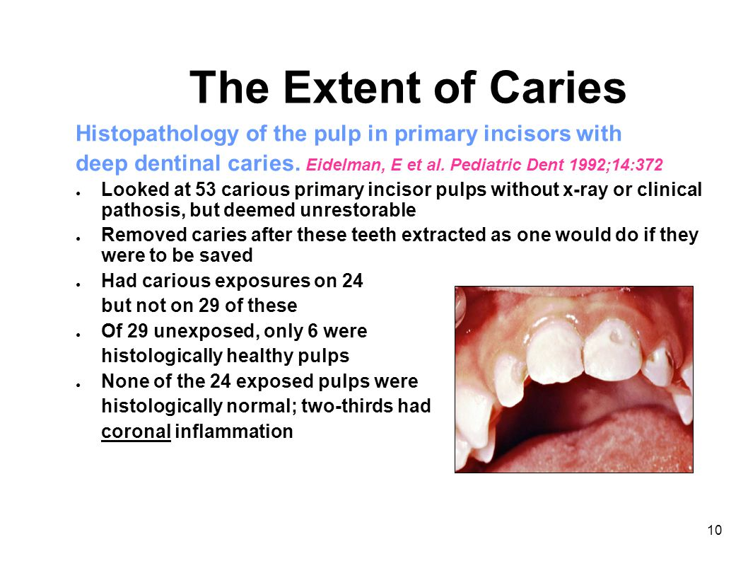 10 The Extent of Caries Histopathology of the pulp in primary incisors with deep dentinal caries.